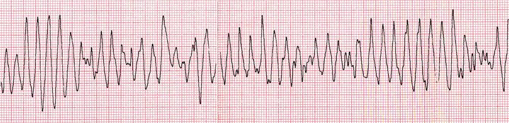 Polymorfní komorová tachykardie degenerující do fibrilace komor – záznam při resuscitaci.