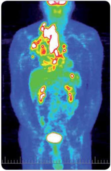 Obraz celotělového PET vyšetření před zahájením iniciální protinádorové léčby (4/2004). Světlá místa značí vysokou metabolickou aktivitu.