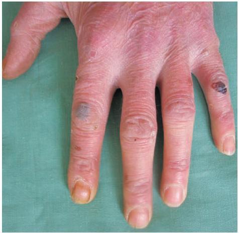 Hemoragické puchýře, eroze a milia na dorzu ruky a prstě – obraz odpovídá klasické mechanobulózní formě EBA