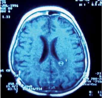Pineoblastom.  Obr. 3a) MR v transverzální rovině řezu. Obr. 3b) MR v sagitální rovině řezu. Obr. 3c) Peroperační pohled na tumor. Obr. 3d) Pohled do III. komory po exstirpaci nádoru. Obr. 3e) Pooperační MR kontrola. Obr. 3f) Implantační metastáza v levé postranní komoře detekovaná s odstupem jednoho roku po operaci.