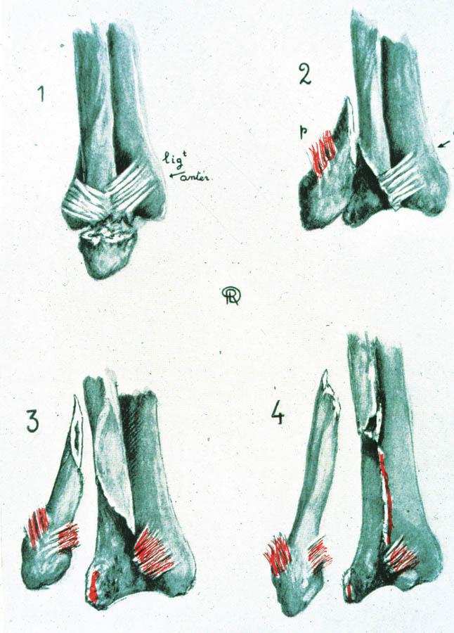 Danisova klasifikace zlomenin hlezna (Převzato [7])