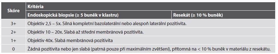 Kritéria pro imunohistochemické skórování exprese HER2 v adenokarcinomu žaludku.