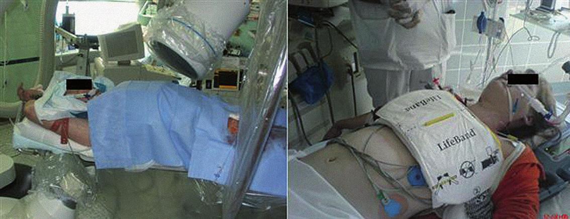 Levý panel: Mírná hypotermie na katetrizačním sále. Pacient s akutním infarktem myokardu s ST elevacemi, který na katetrizačním sále bezprostředně po úspěšné kardiopulmonální resuscitaci mimo nemocnici podstupuje primární koronární intervenci a zároveň terapeutickou mírnou hypotermii kombinací intravenózního podání chladného roztoku a ledových zábalů. Pravý panel: KPCR u mladé pacientky s oběhovou zástavou z metabolických příčin s pomocí mechanizované pomůcky AutoPulse (AutoPulse, Revivant Corp., Sunnyvale, California).