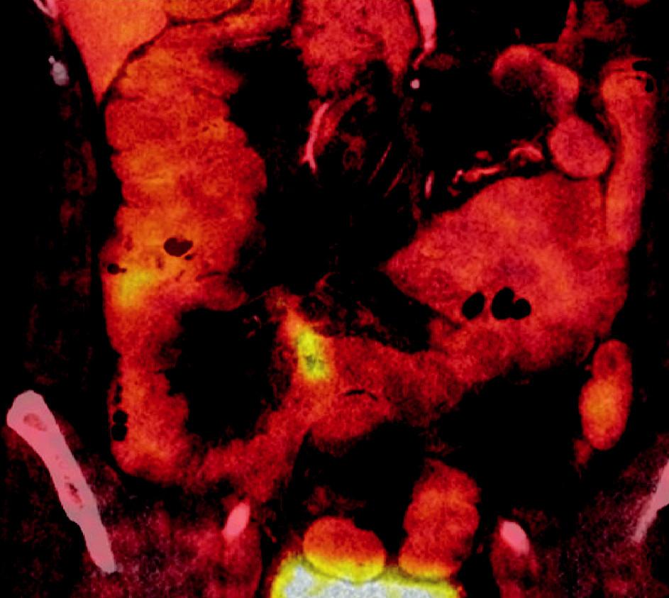 PET/CT 05/2007 Obr. 2. PET/CT 05/2007 Změny v pravé polovině mezenteria jsou nejspíše reakcí na předchozí operační výkon a komplikované hojení střevní anastomózy.