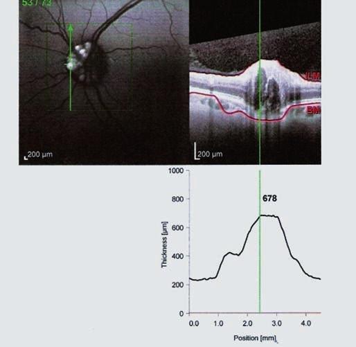 OCT Spectralis – fundus autoflorescencia ľavého oka (pacient č. 1). Drúzy sa zobrazujú ako hyperfluorescentné útvary. V pravej časti obrázka prierez predného úseku zrakového nervu OCT.