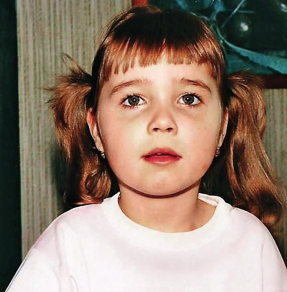 Dívka s Rettovým syndromem 5 let, období progrese epileptických paroxysmů.