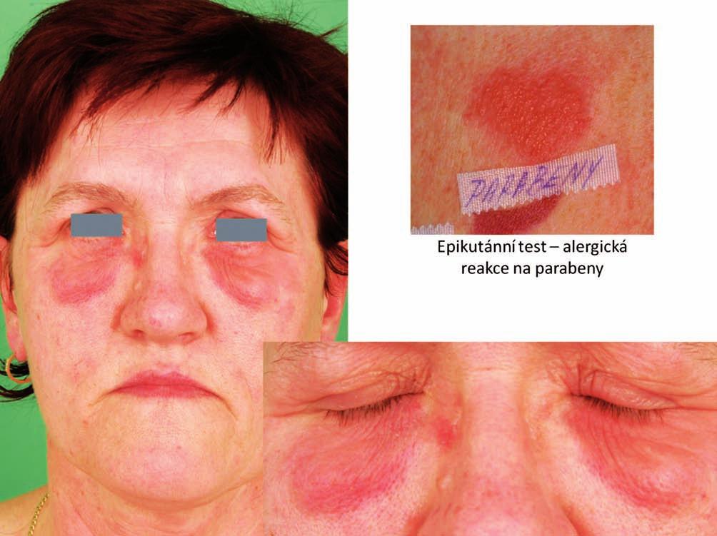 Eczema contactum – parabeny, alcoholes adipis lanae (přípravky farmaceutické)