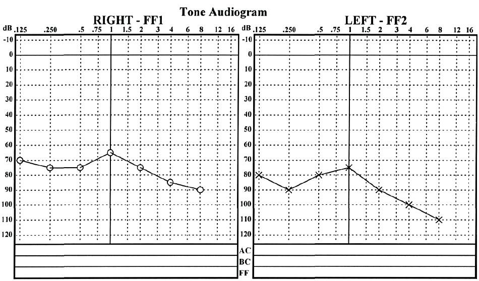 Audiometrické vyšetření po zavedení Microwicku.