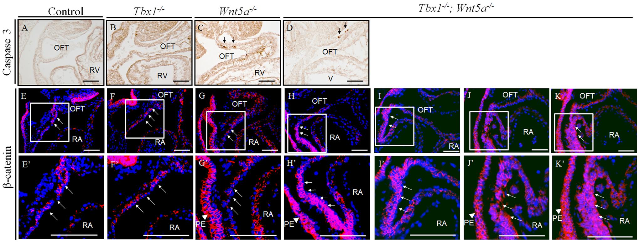 β-Catenin is upregulated in the SHF of <i>Tbx1<sup>−/−</sup>;Wnt5a<sup>−/−</sup></i> embryos at E9.5.