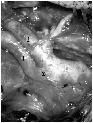 Obr. 1b. Kinking se stenózou ACI. Stav po resekci stěny ACI a everzní CEA technikou one-way-up techniky. 1. – a. carotis interna, 2. – a. carotis externa, x – anastomóza.
