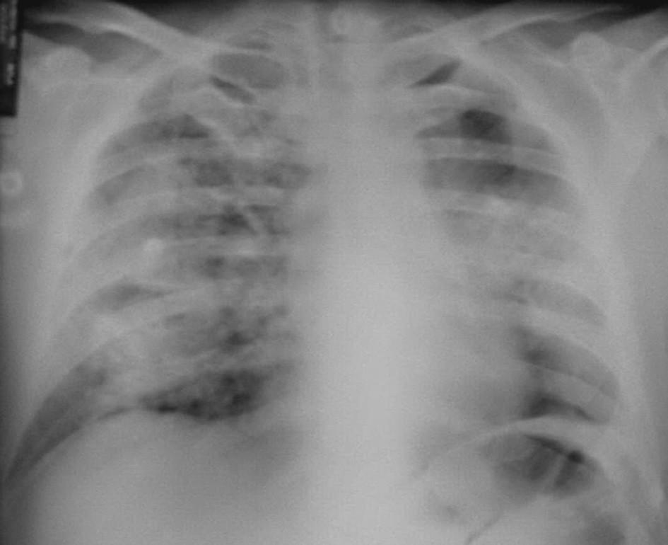 Plíce s projevy intraalveolárního krvácení – červen 2004.