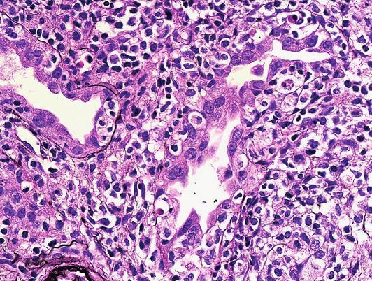 Detail těžkého poškození tubulů při tubulo-intersticiální rejekci s pestrou zánětlivou celulizací. Dobře rozpoznatelné halo v okolí intraepiteliálních lymfocytů a téměř cirkulární/kompletní destrukce tubulární bazální membrány (PAS, objektiv 40x).