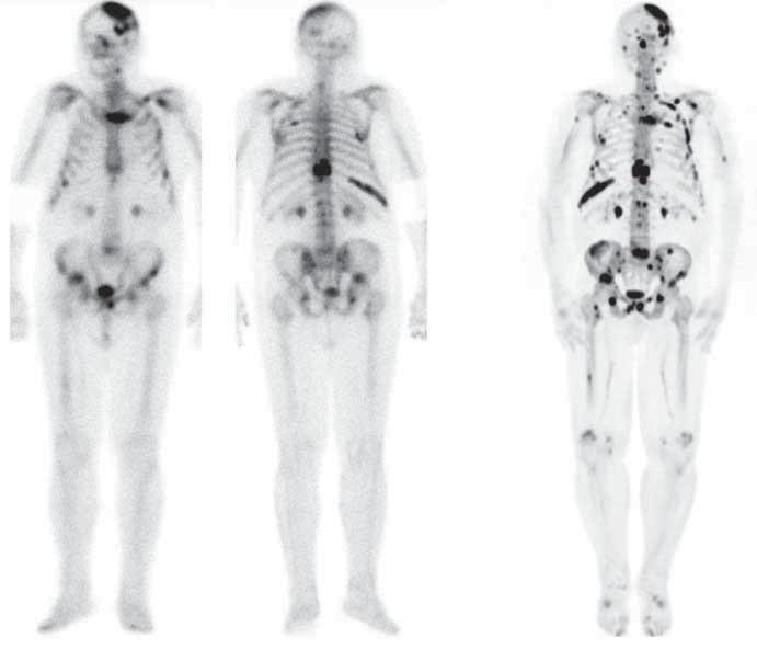Příklad porovnání [<sup>99m</sup>Tc]-MDP scintigrafie (dvojice vlevo, přední a zadní projekce) a [<sup>18</sup>F]-NaF PET (vpravo, 3D sumovaný obraz, tzv. MIP) u téhož pacienta. Obě vyšetření jsou provedena zhruba ve stejném období, PET vykazuje vyšší senzitivitu (detekuje více ložisek), ale nižší specifitu (některá z ložisek nemusejí souviset s onkologickým postižením, může jít o příčinu jinou). Navíc je patrný i vyšší (lepší) kontrast v PET obrazu, menší aktivita v tělovém pozadí (background).