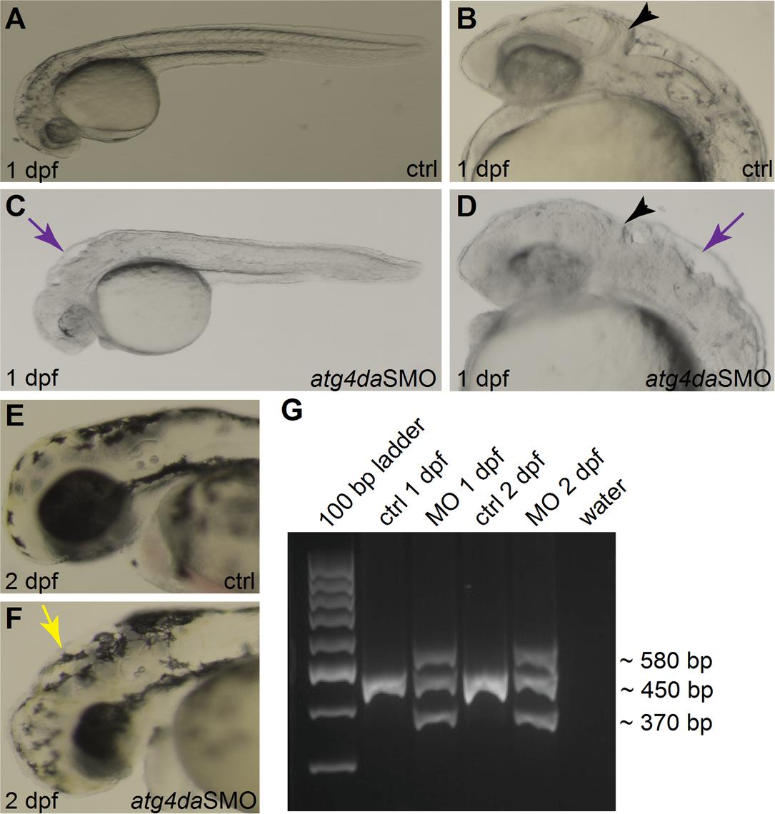 Phenotype of <i>atg4da</i> morphant zebrafish embryos.