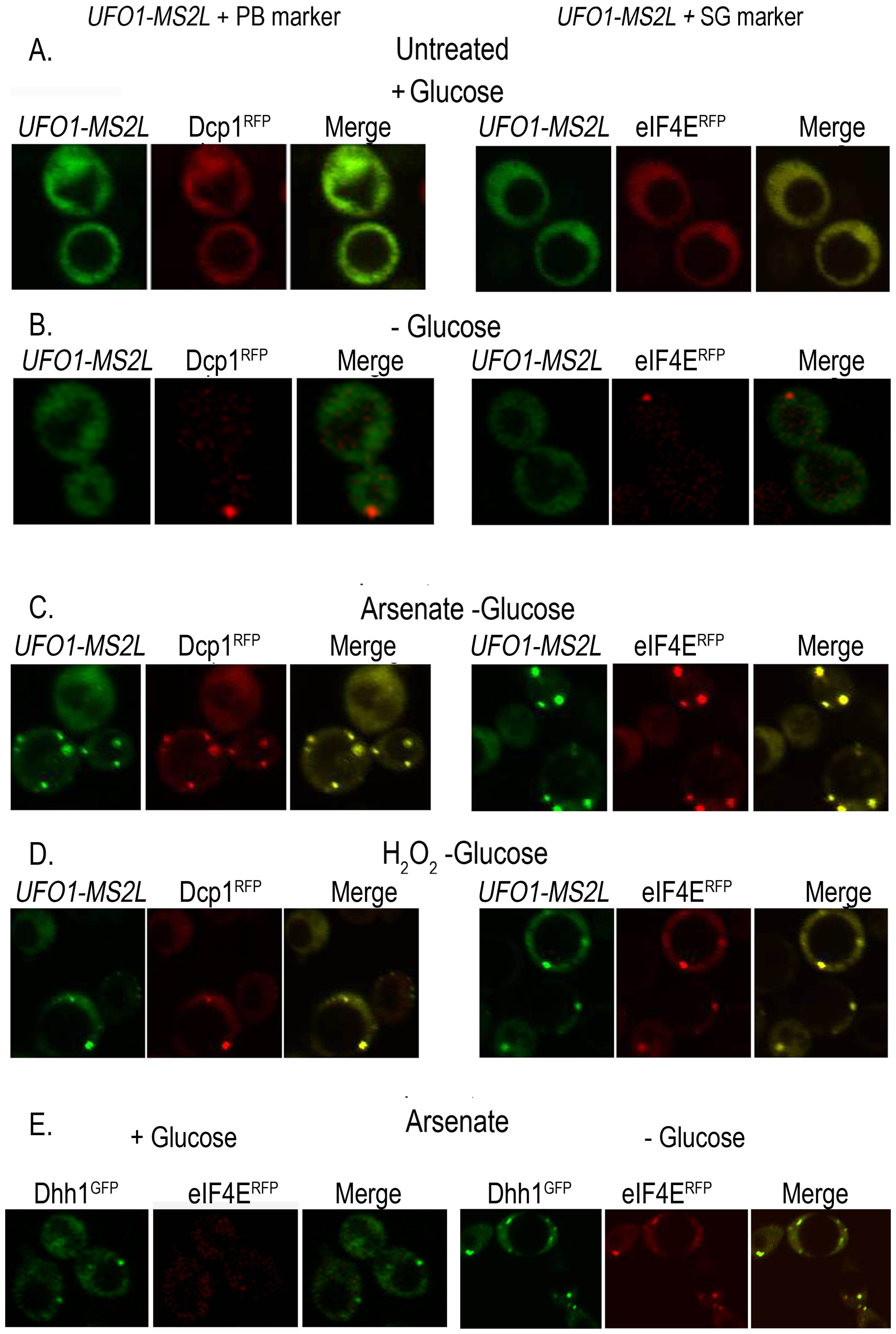 <i>UFO1-MS2L</i> mRNAs induced by stress colocalize with subunits of PBs and SGs.