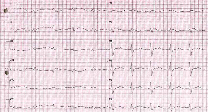 EKG po resuscitaci se známkami charakteristickými pro Brugada syndrom.