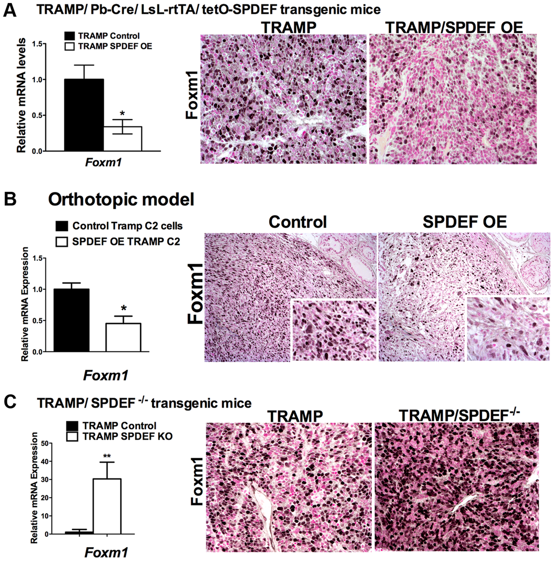 SPDEF and Foxm1 are inversely correlated in prostate carcinogenesis.