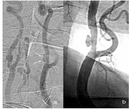 Exulcerovaný plát v DSA zobrazení – neselektivní nástřik do oblouku aorty (a), selektivní nástřik do levé společné karotické tepny (b)