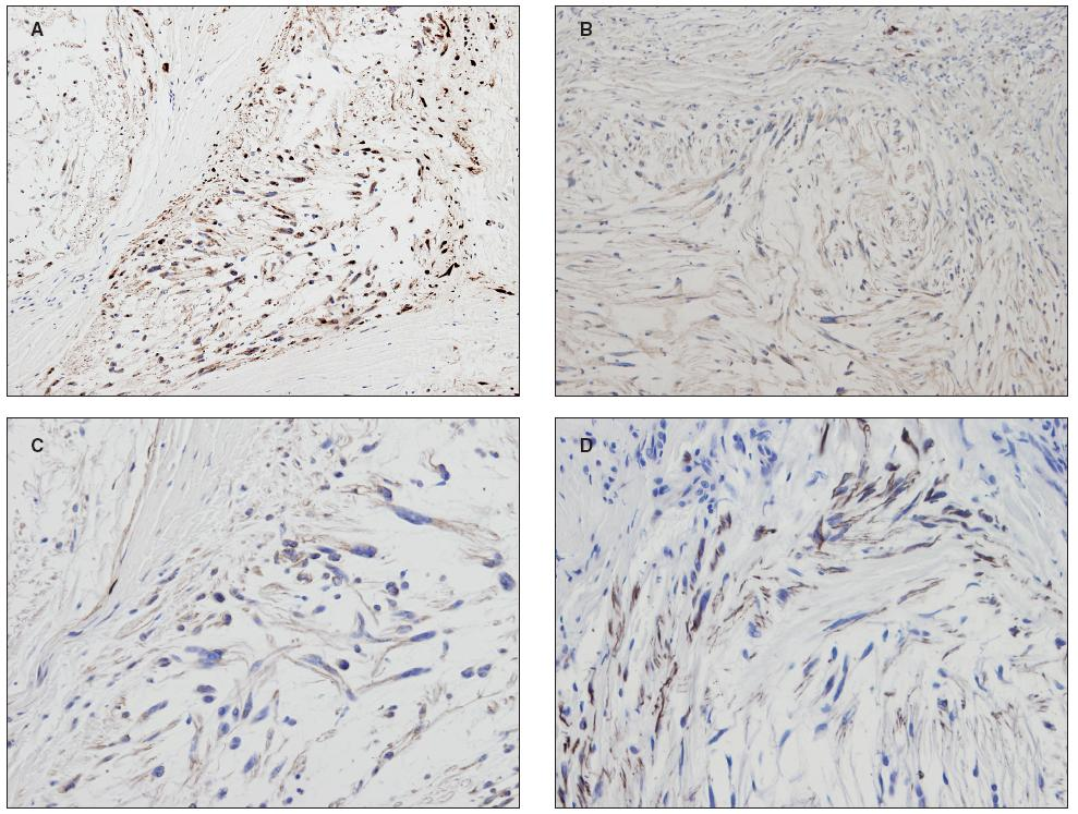 Figure 2. Immunohistochemical features. (A) S100 protein: (B) EMA positivity (includes some plasmocytic cells as an internal control); C) claudin-1; (D) GFAP is positive in the peripheral zone of the lobule.