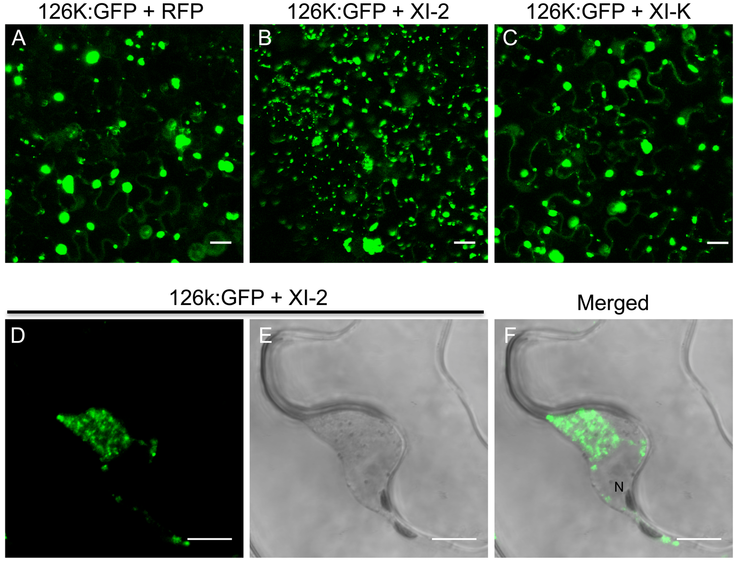 Inhibition of myosin XI-2 disrupts the normal subcellular localization of expressed 126k:GFP.