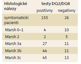 Výskyt symtomatických pacientov podľa histologických nálezov a pozitivity HLA-DQ2/HLA-DQ8. Tab. 4. Distribution of histologic Marsh grading and HLA-DQ testing results in symptomatic patients.