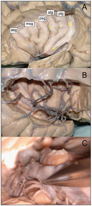 A. Pohled na gyrifikaci levé inzuly po odstranění frontálního, parietálního a temporálního operkula; asg, amg, psg: gyrus insulae brevis anterior, medius et posterior; alg, plg: gyrus insulae longus anterior et po sterior; 1: sulcus periinsularis anterior, 2: sulcus periinsularis inferior a, pars horizontalis b, pars verticalis; 3: sulcus periinsularis superior; 4: sulcus centralis insulae. B. Inzulární, operkulární a kortikální větve ACM vpravo. C. Odstup laterálních lentikulostriatálních perforátorů z M1.
