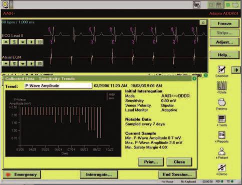 Průběh měření síňového sensingu.