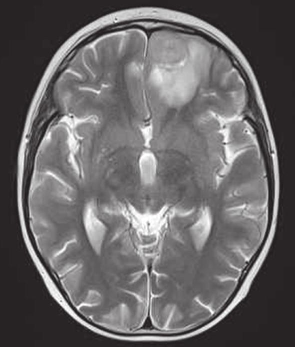 MRI mozgu, T1 vážený obraz postkontrastne (vľavo) a T2 vážený obraz (vpravo) v transverzálnej rovine. Metastáza frontobazálne vľavo – v T1 sýtiace sa ložisko s perifokálnym edémom do 16 mm, v T2 nehomogénna lézia ľahko hyperintenzná voči kortexu. [10.10.2013]