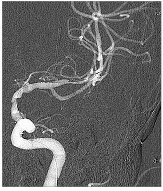 DSA po předdilataci balonkem, před implantací stentů.