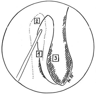 Identifikace polohy slzného vaku  - endonazální pohled na laterální nosní stěnu, umístění vaku vůči dalším strukturám. Špička intranazálně zavedené branže ukazuje na pravděpodobnou lokalizaci vaku. 1 – linea maxillaris, 2 – saccus lacrimalis, 3 – concha nasi media.
