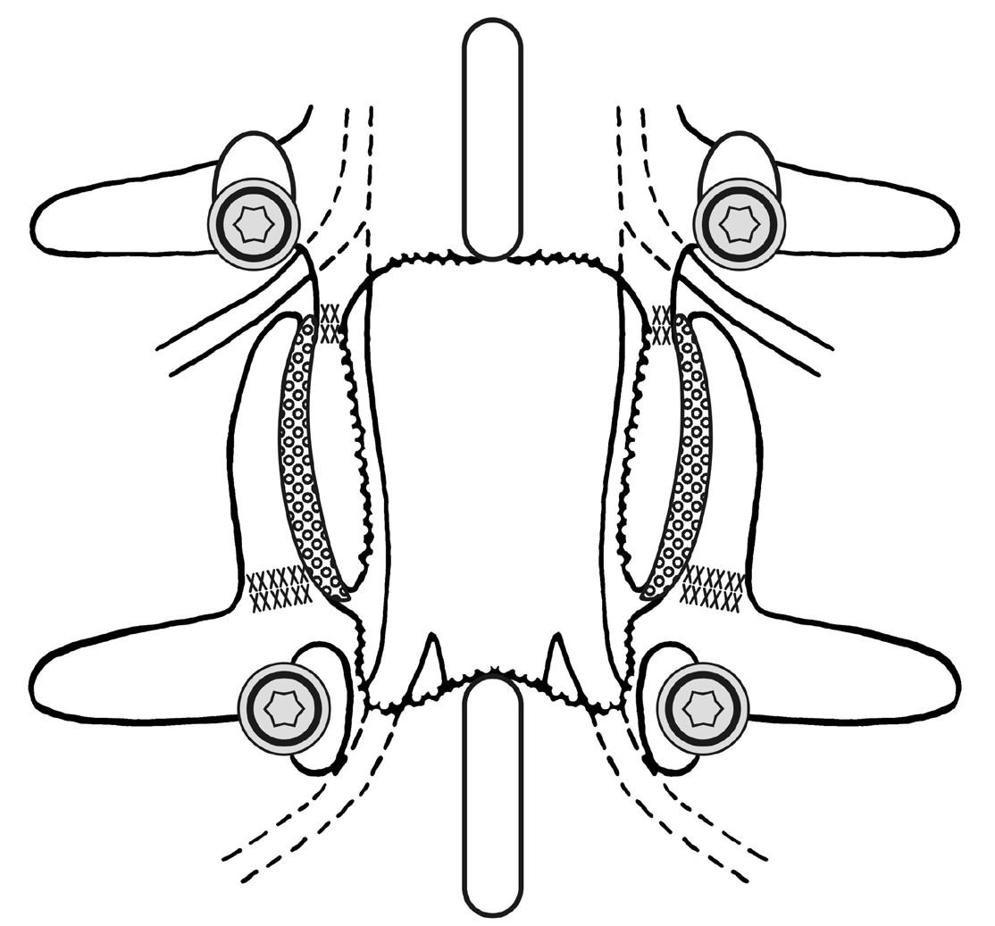 Schéma založení nitrokloubní artrodézy, po odfrézování kloubních chrupavek, se vložením kortikospongiózní kosti z odstraněného obratlového oblouku do vnitřního prostoru meziobratlových kloubů Fig. 2: Scheme of the intraarticular arthrodesis after the drilling of a/the cartilage, with the insertion of corticospongious bone chips from the removed vertebral arch inside the joint´s caves