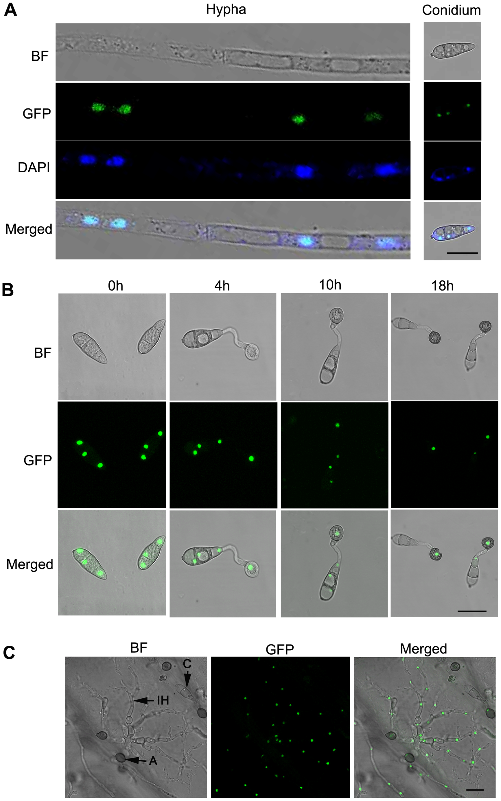 Intracellular localization of MoSom1-green fluorescent protein.