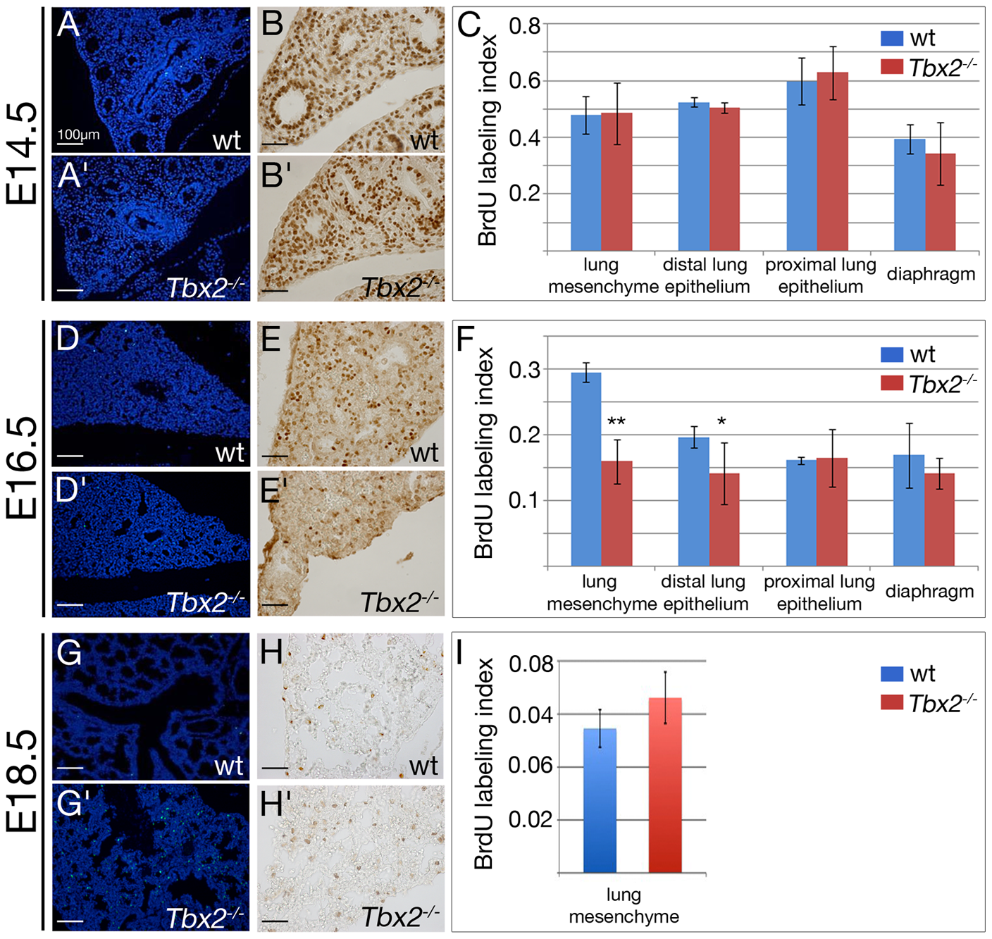 Decreased proliferation and increased apoptosis contribute to hypoplasia of <i>Tbx2</i>-deficient lungs.