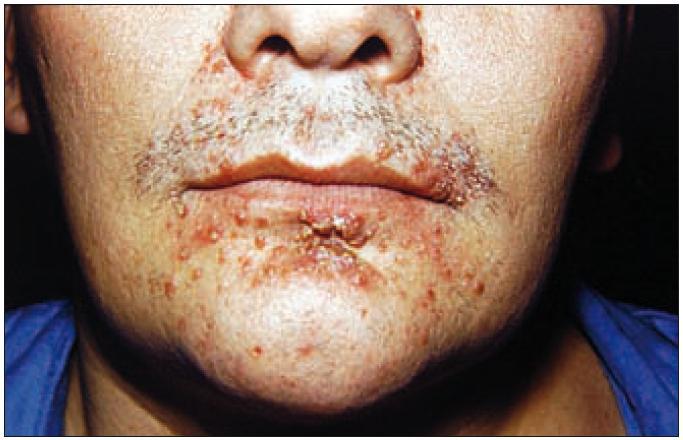 Detailní záběr na periorální kožní infiltráty.