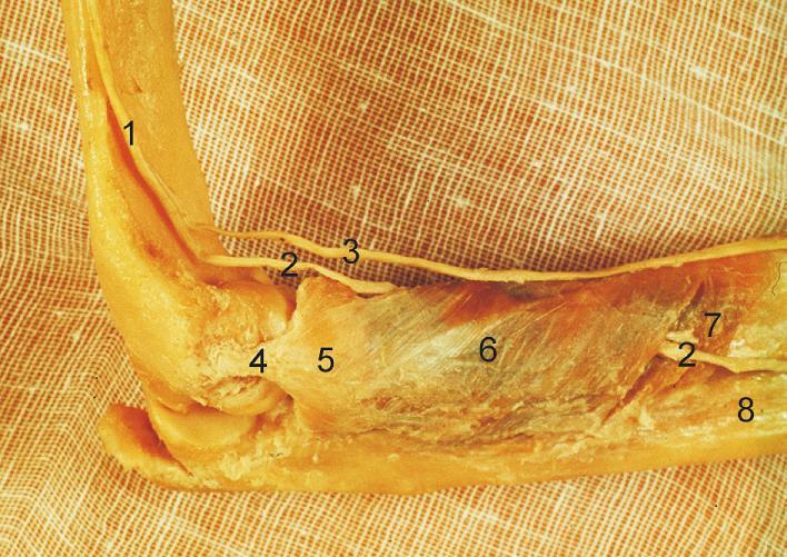 Komplex lig. collaterale lat. a m. supinator: 1 – n. radialis, 2 – r. profundus n. radialis, 3 – r. superficialis n. radialis, 4 – lig. collaterale lat., 5 – lig. anulare radii, 6 – povrchová vrstva m. supinator, 7 – hluboká vrstva m. supinator, 8 – ulna. <i>(Převzato z Bartoníček J, Heřt J. Základy klinické anatomie pohybového aparátu. Praha, Maxdorf 2004.)</i> Fig. 4: Lateral collateral ligament complex and the supinator: 1 – radial nerve, 2 – deep branch of radial nerve, 3 – superficial branch of radial nerve, 4 – lateral collateral ligament, 5 – radial annular ligament, 6 – superficial layer of the supinator, 7 – deep layer of the supinator, 8 – ulna.<i>(Reprinted from Bartoníček J, Heřt J. [Outline of Clinical Anatomy of Musculoskeletal Apparatus]. Praha, Maxdorf 2004.)</i>