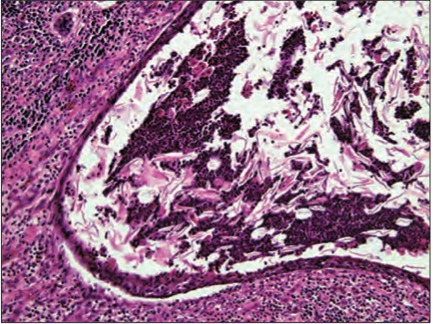 Fig. 4. Histological examination of dermoid cyst with preserved epithelium and inflammatory cells (HE, 200×).