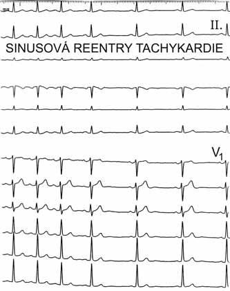 Sinusová reentry tachykardie. Morfologie P-vln v posledních 3 stazích při sinusovém rytmu je ve všech 12 svodech shodná s morfologií P-vln při tachykardii zobrazené v prvních 4 stazích, kdy tachykardie končí prakticky skokem, na rozdíl od nepřiměřené sinusové tachykardie, která by končila pozvolna.