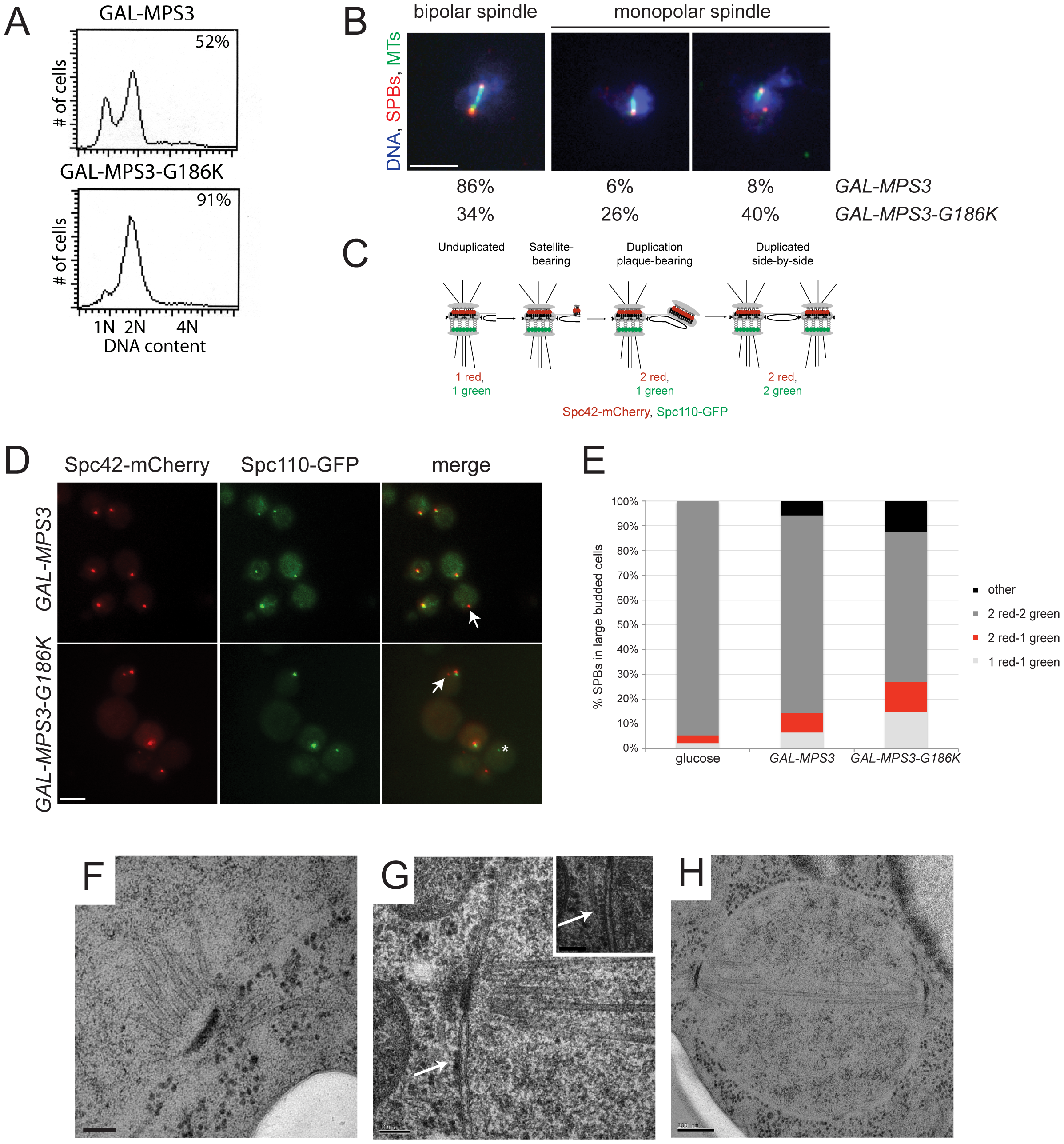 <i>MPS3-G186K</i> expression causes a mitotic arrest due to SPB duplication defects.