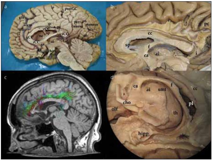 Mediální aspekt mozkové hemisféry, fasciculuscinguli, struktury limbického systému, thalamus. Obr. 1a) Pohled na mediální stranu hemisféry z interhemisferického řezu. ACom – přední komunikující arterie; A2 – A2 úsek přední mozkové arterie; a. cm – arterie calloso marginalis; a. pc – arteria pericallosa; gs – gyrus subcallosus; rCC – rostrum corporis callosi; gCC – genu corporis callosi; cCC – corpus corporis callosi; th – thalamus; e – epiphysis; ai – adhesio interthalamica; cho – chiasma opticum; gfs – gyrus frontalis superior; lp – lobulus paracentralis; sc – sulcus centralis; postGC – gyrus postcentralis; gl – gyrus lingualis; sca – sulcus calcarinus Obr. 1b) Vypreparovaná vlákna gyrus cinguli. Je patrné rozšíření gyrus cinguli zvláště po připojení vláken z precuneu. cc – corpus callosum; sp – septum; f – fornix; ai – adhesio intherthalamica; ca – commissura anterior; pc – precuneus Obr. 1c) Traktografie vláken gyrus cinguli. Obr. 1d) Hluboké středočárové struktury limbického systému a bazálních ganglií z mediálního pohledu. olf – tractus olfactorius; cho – chiasma opticum; ca – commissura anterior; ai – adhesio intherthalamica; smt – stria medullaris thalami; th – thalamus; f – fornix; pl – plexus choroideus; cc – corpus callosum; hipp – hippocampus