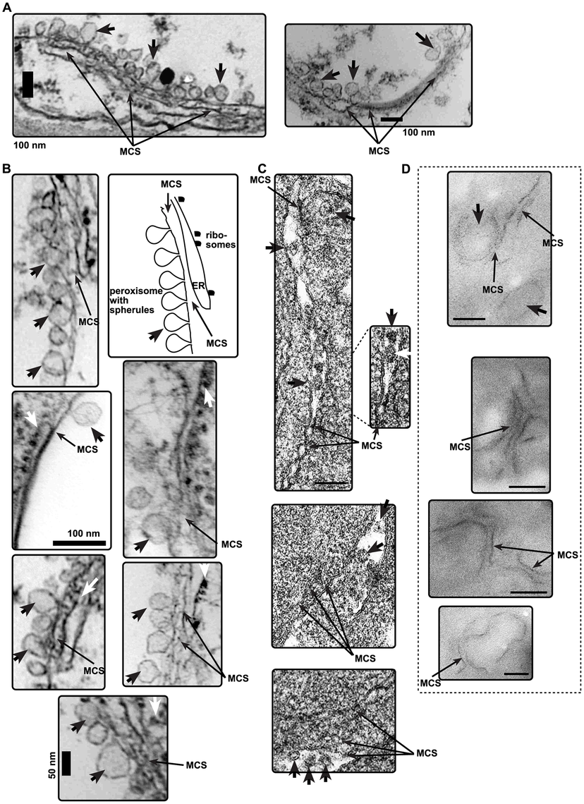 The presence of MCS-like structures in the vicinity of tombusvirus-induced spherules in plant cells infected with CNV or in yeast cells replicating TBSV repRNA.