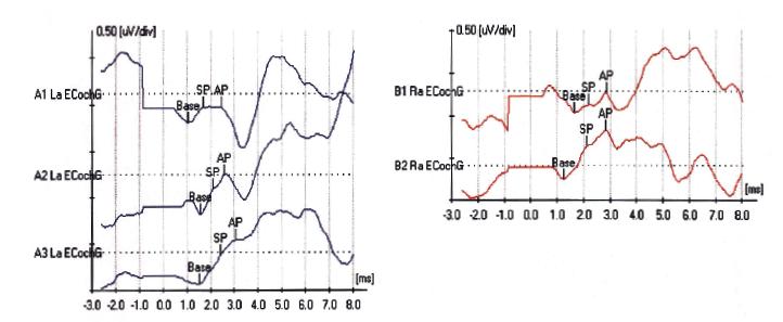 Elektrokochleografia u pacienta s Menierovou chorobou vľavo.