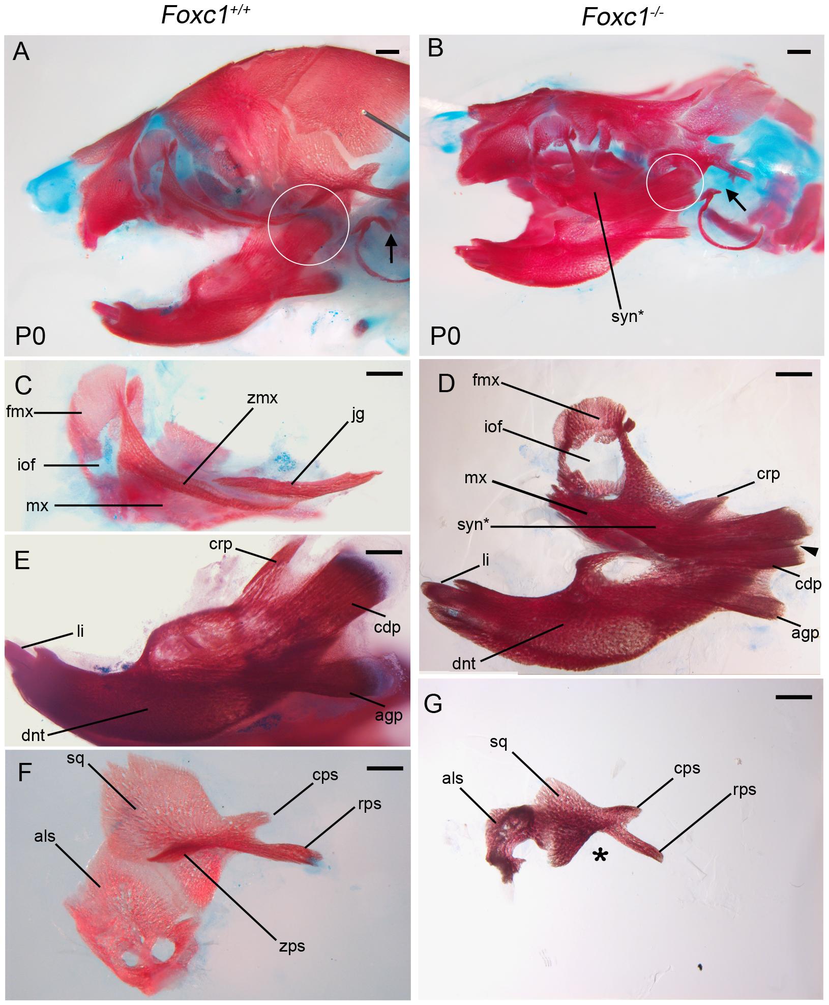Foxc1<sup>−/−</sup> neonates exhibit syngnathia and TMJ agenesis.
