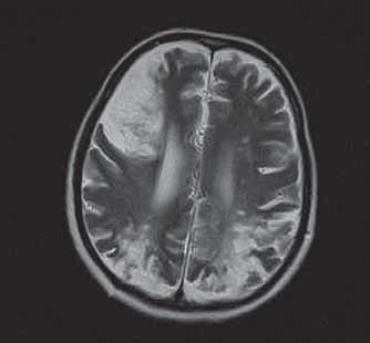 Kontrolné vyšetrenie. MRI nález progresie rozsahu ischémií v rozličných vaskulárnych teritóriách s prechodom do chronického štádiu s tvorbou postmalatických kortiko-subkortikálnych defektov, ohraničené perifokálnou gliózou.