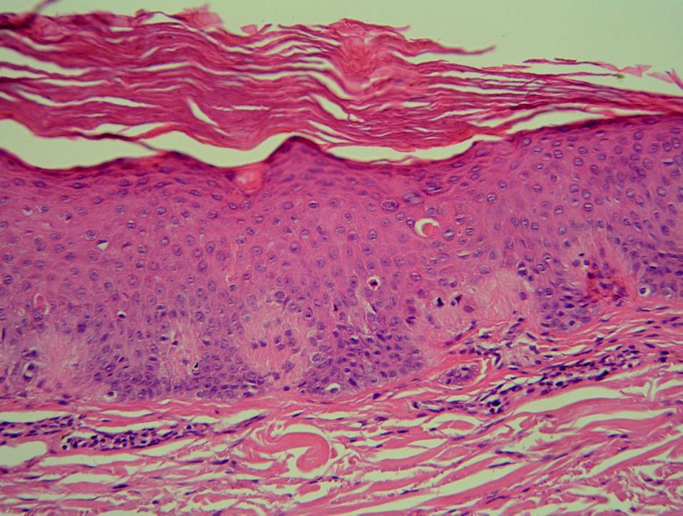 Histopatologický obraz LA – hyperkeratóza, hypergranulóza, akantóza, dilatované dermální papily díky shlukům amorfního nefibrilárního materiálu (HE, zvětš.100x).