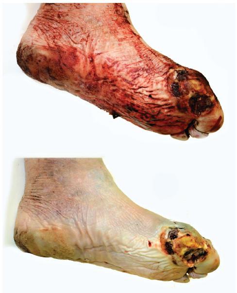 Skupina vředovitých defektů pod základním článkem palce levé nohy. Nahoře stav před omytím.