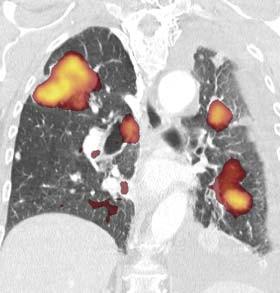 Obr. 2. Generalizace karcinomu ledviny po nefrektomii. Celotělový obraz PET pomocí MIP-rekonstrukce (maximum intensity projection) ukazuje mnohočetné fokusy vysoké akumulace <sup>18</sup>F-FDG ve skeletu a v oblasti hrudníku. V plicním parenchymu byla objevena mnohočetná objemná ložiska vysoce akumulující FDG koronární HRCT-rekonstrukce (B), fúze PET a CT 1:1 (C), čisté PET-zobrazení (D).