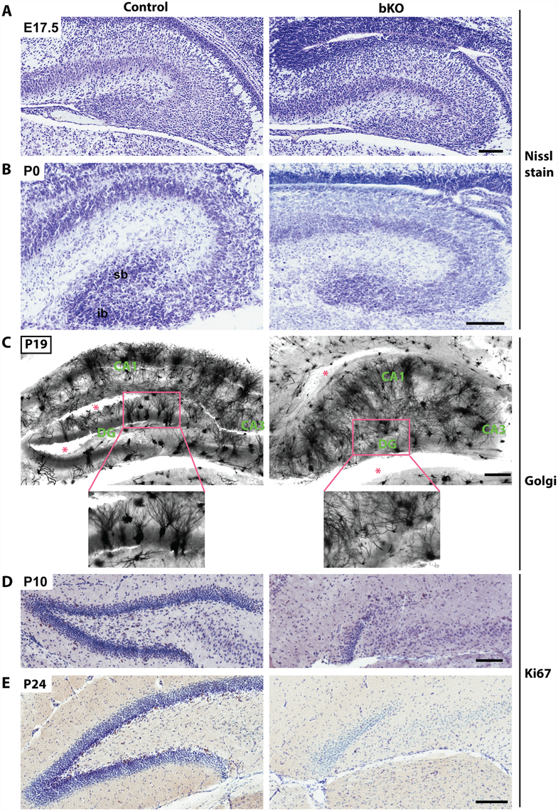 Brpf1 loss impairs dentate gyrus development, dendritic tree formation and neuronal proliferation.