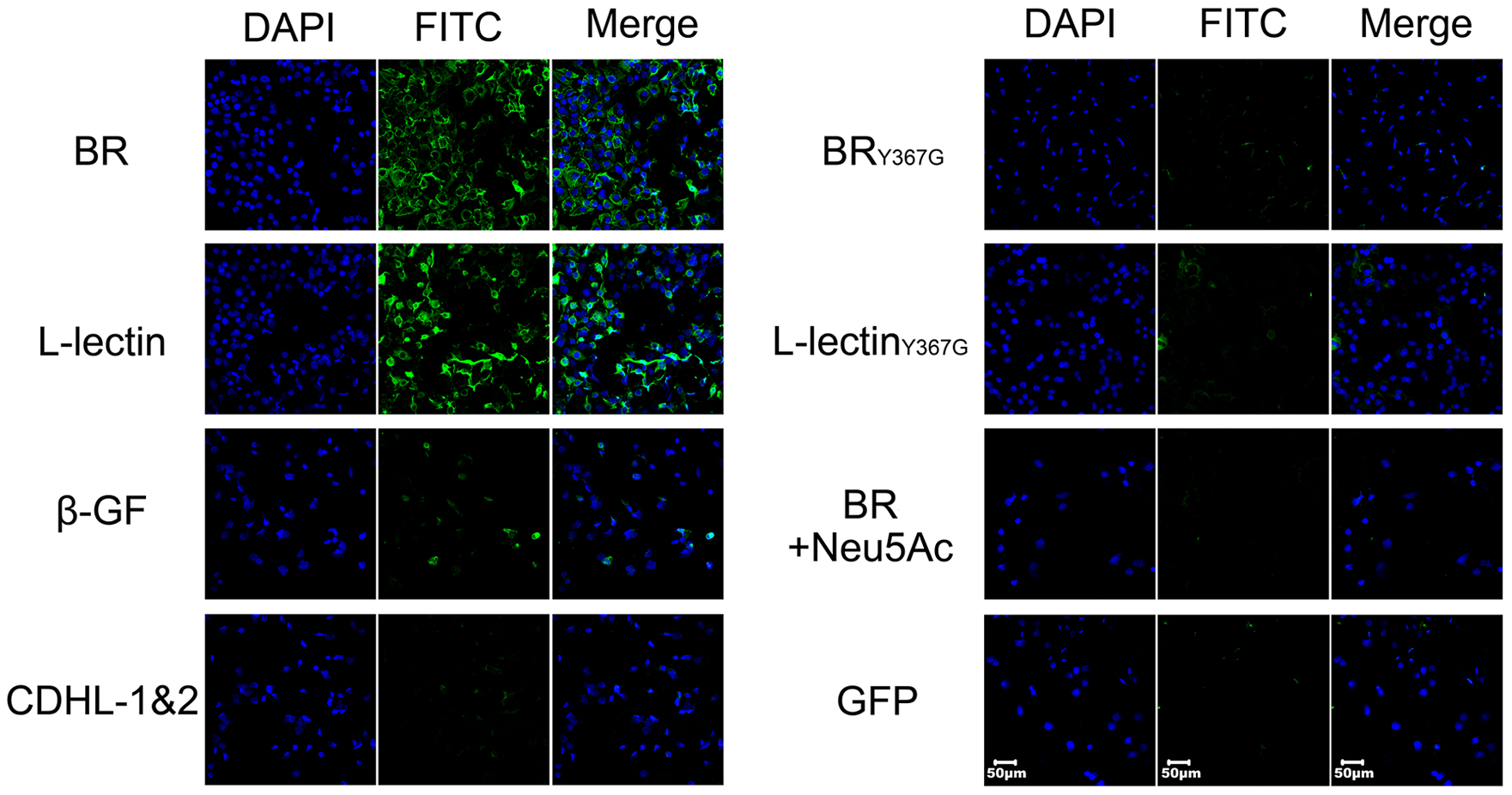 Contribution of the L-lectin module to bacterial adhesion to human lung epithelial cells.