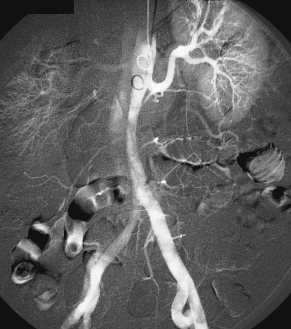 DSA obraz disekce šířící se na břišní aortu a pravé pánevní řečiště, pravá renální tepna plněna z nepravého lumen Pic. 10. A DSA view of the dissection involving the abdominal aorta and the right –sided pelvic vasculature. The right renal artery is supplied from a false lumen