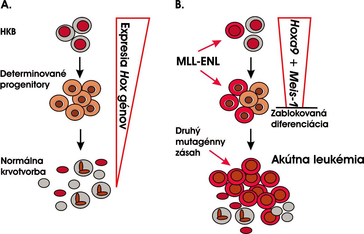 Akútna leukémia vzniká v priebehu mnohokrokového evolučného procesu postupnou akumuláciou genetických a epigenetických zmien v genóme. A. Normálna krvotvorba. HKB je jedinou bunkou, ktorá je schopná sebaobnovovania a zároveň diferenciácie do všetkých bunkových typov krve. B. MLL-ENL je prvou mutáciou, ktorá môže zasiahnuť buď HKB a zosilniť jej potenciál sebaobnovovania alebo determinované progenitory, v ktorých aktivuje tento program. Zároveň vedie k zablokovaniu bunkovej diferenciácie v preleukemickom štádiu, a získavaním ďalších mutácií dochádza k úplnej leukemickej transformácii a vzniku AL (modifikované podľa 27).